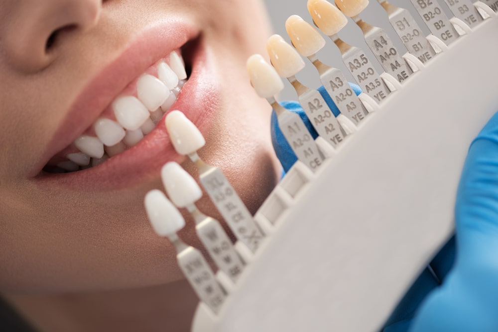 Why Do We Need a Dental Professional for Teeth Whitening? - Refresh Dental